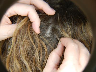 Head_Lice